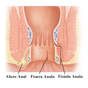 tars - durere la nivelul articulațiilor metatarsiene artrita este luată