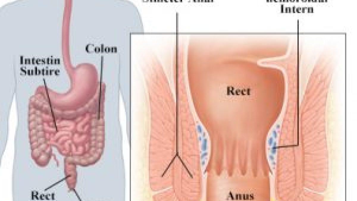 Durerea inghinala – care pot fi cauzele