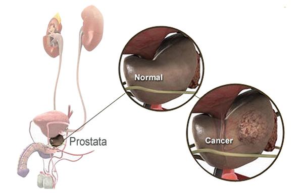 Cinci semne de cancer la bărbați le ignoră
