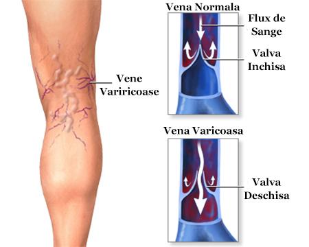 tratamentul medical al venelor varicoase pe picioare)